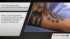 Cascade Tattoo Removal Informational Video 1