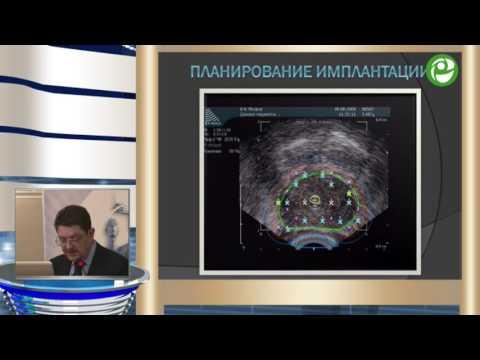брахитерапия при раке простаты в центре блохина