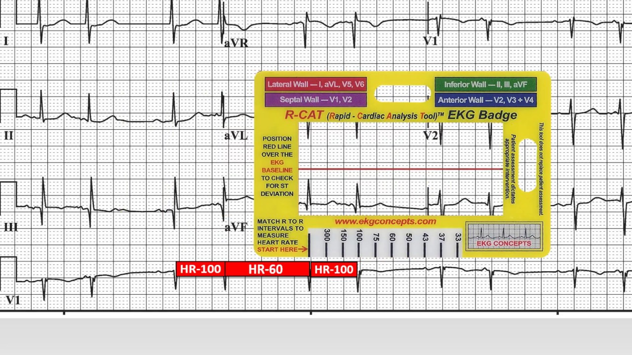 Ekg Concepts 12 Lead Ekg Case Study 5 Youtube