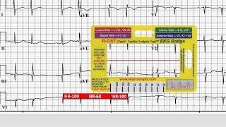 EKG Concepts - 12 Lead EKG Case Study 5