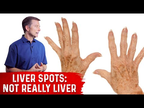 What Causes Liver Spots (Aging Spots)? Hint...it's NOT the liver