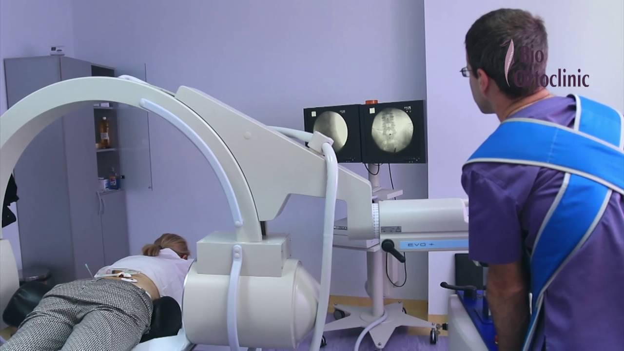 tratamentul rupturii parțiale a ligamentelor articulației umărului inflamația meniscului a tratamentului unguentului genunchiului