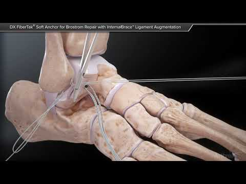 deteriorarea ligamentelor articulației gleznei drepte)