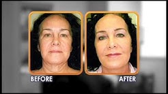 Dr Barr - West Palm Beach Plastic & Cosmetic Surgery | (561) 325-6933