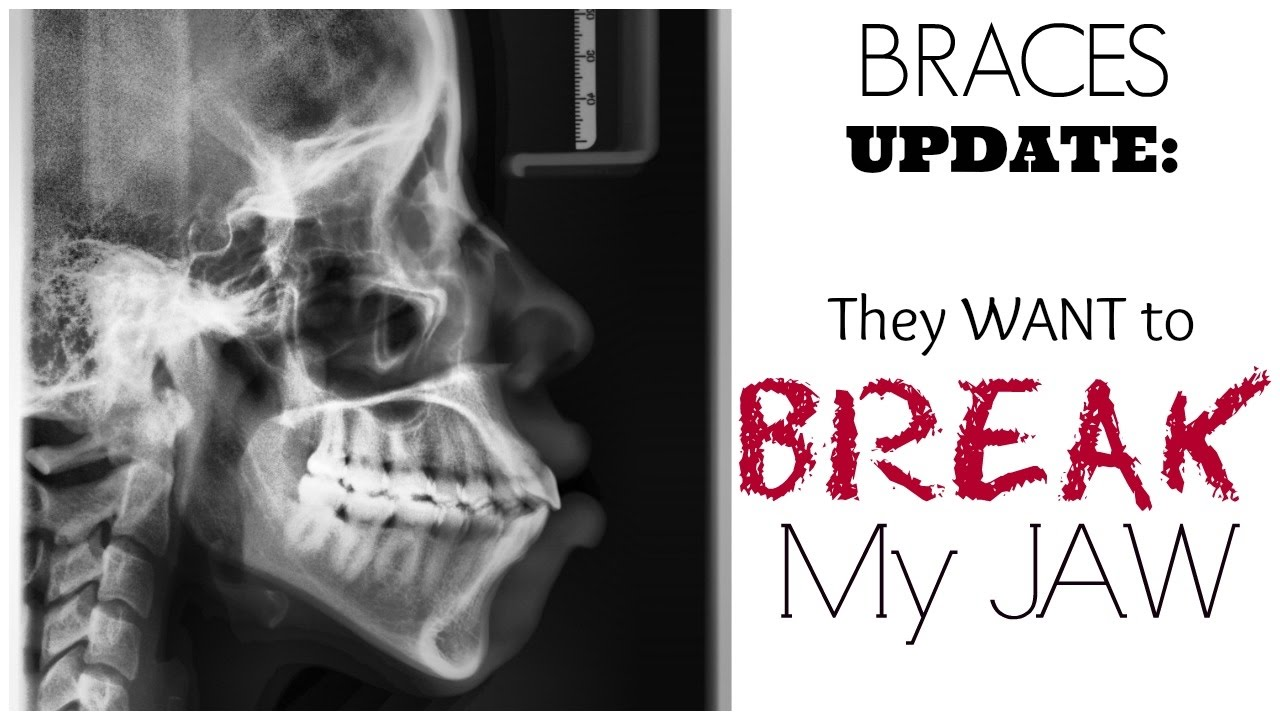 Braces Update: BROKEN JAW SURGERY!?!? (Before & After Pics ...