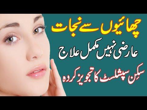 Freckles and Pigmentation Treatment || Urdu || Hindi
