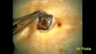 Big pimples and blackhead removal Part 23 YouTube