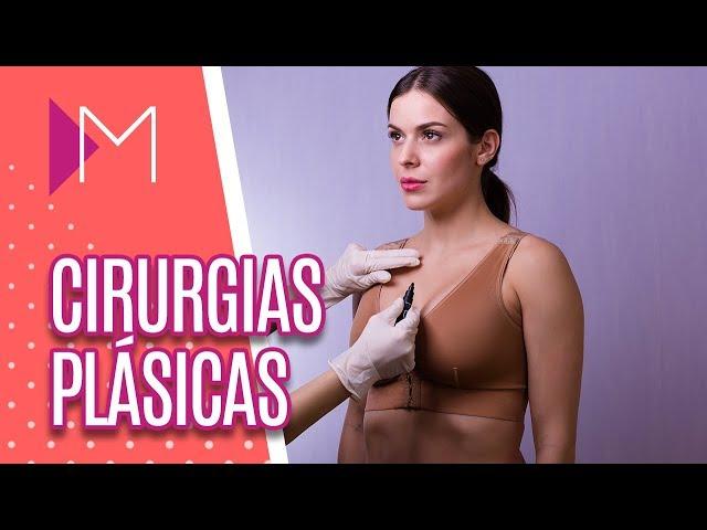 Cirurgias plásticas nas mamas - Mulheres (20/03/2019)