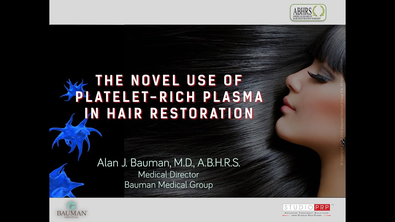 use of platelet rich plasma for hair regrowth dralanbauman use of platelet rich plasma for hair regrowth dralanbauman