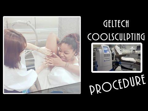 Geltech Coolsculpting PROCEDURE Daegu V Plastic Surgery PT. 2