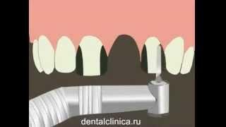 Лечение зубов красивая улыбка виниры коронки протезирование имплантация приятные цены(, 2014-03-25T19:48:17.000Z)