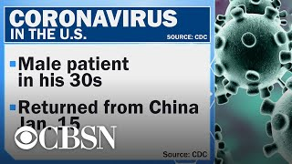 First U.S. case of deadly coronavirus diagnosed in Washington state