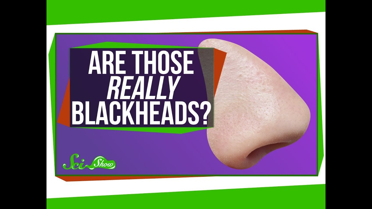 Your Blackheads May Not Be Blackheads (and Other Skin Science)
