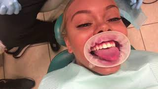 GOT A BAG & FIXED MY TEETH! (MIAMI VLOG)