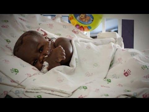 Risky surgery separates parasitic twin