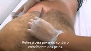 Repeat youtube video Depilação de costas (masculina) - Cera Depilatória Serafina