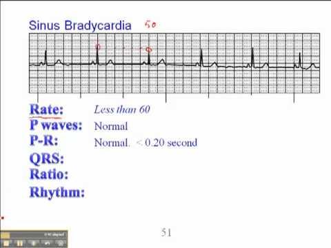 ECG: Sinus Bradycardia...