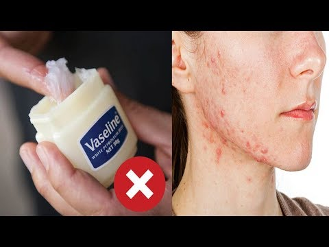 Stop Using Vaseline Immediately! Here Why You Never Put Petroleum Jelly On Your Skin