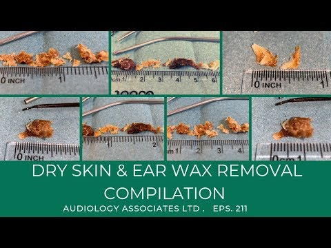 DRY SKIN & EAR WAX REMOVAL COMPILATION - EP 211