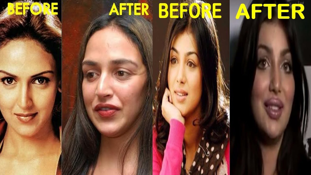 Top 8 Worst Plastic Surgery Of Bollywood Actress L टॉप आठ