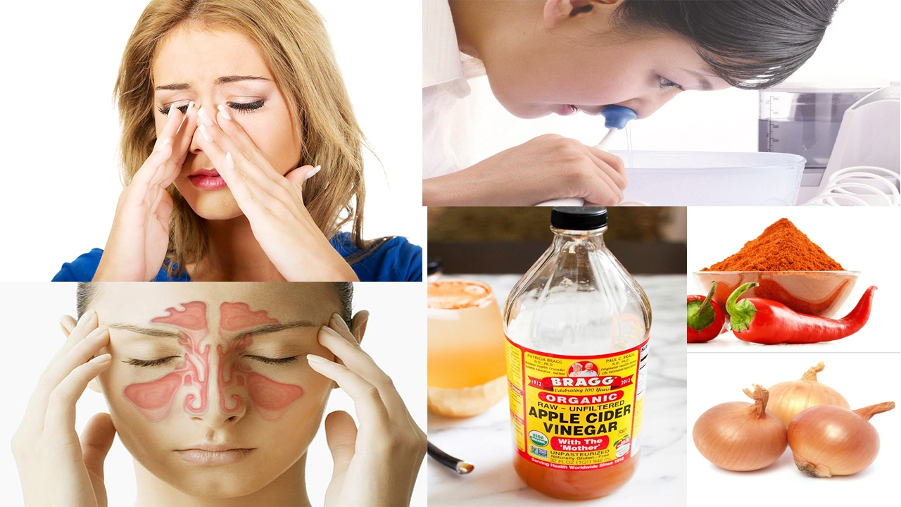How to quickly cure sinusitis