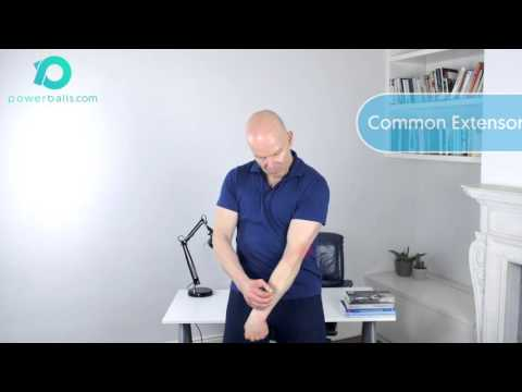 Tennis Elbow / Lateral Epicondylitis - immediate pain relief and lasting rehabilitation