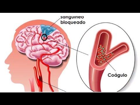 diabetes que causa un derrame cerebral
