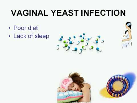 Fishy Vaginal Odor / Bad Vagina Smell / Vaginal Yeast Infection