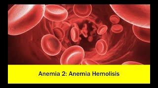 Autoimmune hemolytic anemia - causes, symptoms, diagnosis, treatment, pathology.
