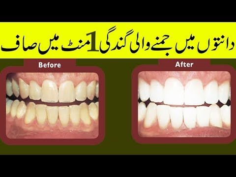 Teeth Whitening At Home Tartar Removal Home Remedy In Hindi Teeth