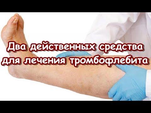 Два действенных средства для лечения тромбофлебита