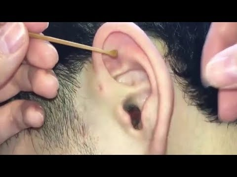 flying-pimples-in-ears-popping-pimple-in-ear