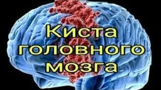 На МРТ головного МОЗГА обнаруживают КИСТУ у 30%. Влияние МОБИЛЬНОГО телефона / Фролов Ю.А.