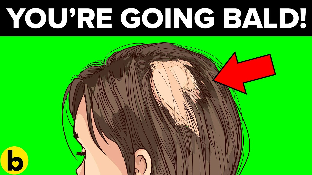 7 Reasons You're Going Bald