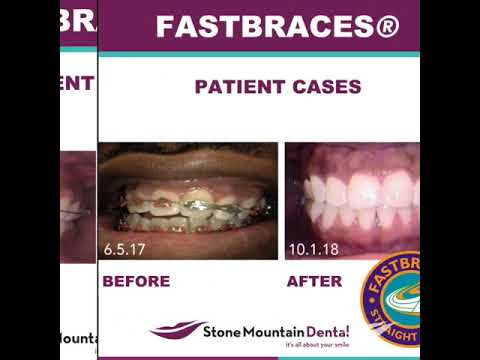 Stone Mountain Dentist - Stone Mountain Dental P C