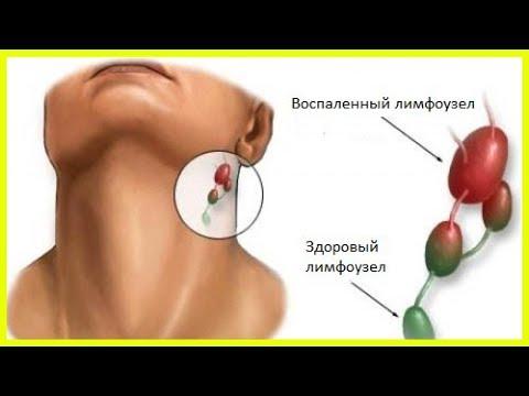 Воспаление лимфоузлов: возможные причины
