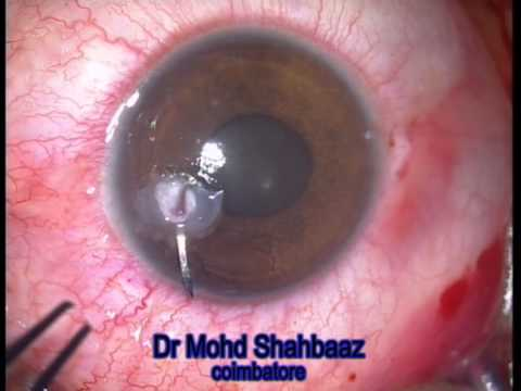 punched out corneal perforation repair with AMG and SUB tenons tissue