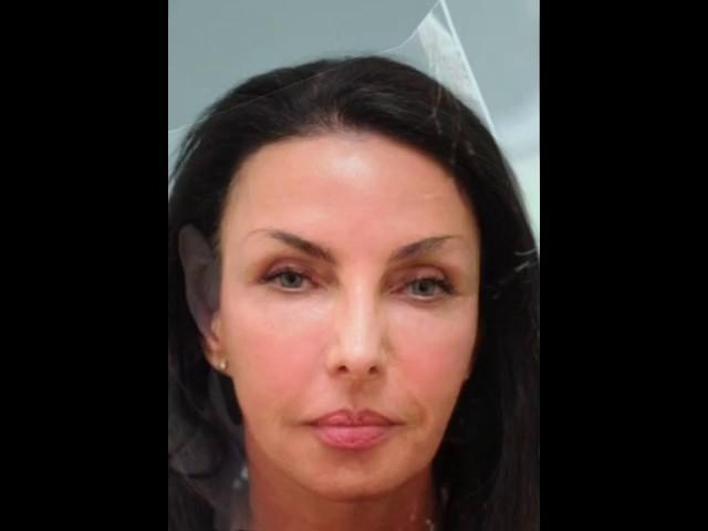Dallas Corrective Facial Fillers Shown Elapsed Over a Decade