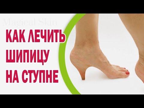 Шипица: фото, лечение шипицы на ноге, ступне
