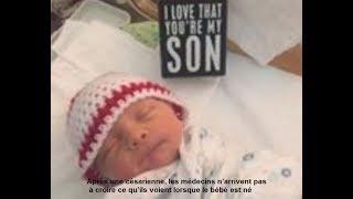 Après une césarienne, les médecins n'arrivent pas à croire ce qu'ils voient lorsque le bébé est né