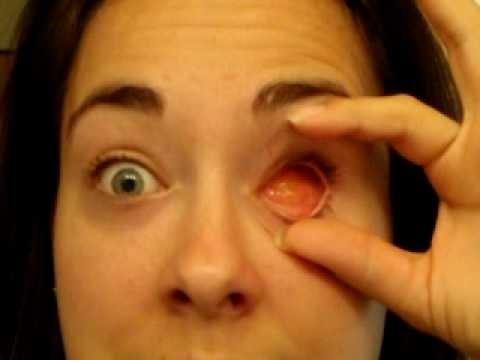 Выпала линза или потерялась в глаз