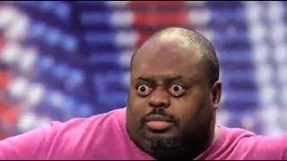 Человек потряс аудиторию шоу Britain's Got Talent, буквально вынув свой глаз из глазницы.