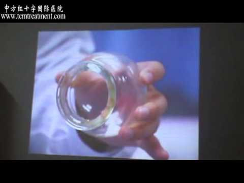 Samson from Mozambique Study the Science of Cupping, in China
