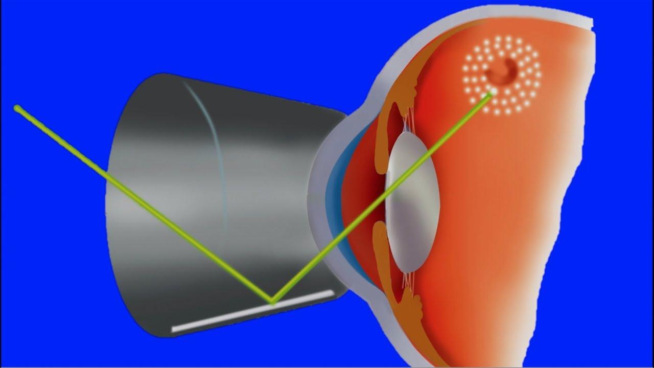 Agujeros y Desgarros de la retina. Cuerpos flotantes, moscas y ...
