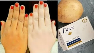 UNBELIEVABLE SKIN WHITENING POTATO,DOVE SOAP AT HOME