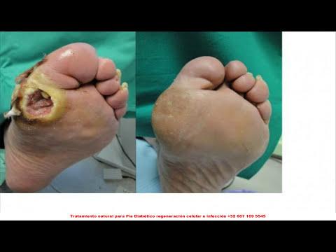 Heridas Con Diabetes