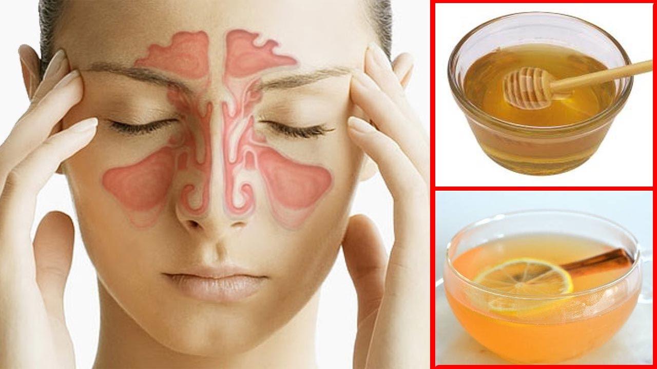 How to get rid of a sinus headache fast sinus pressure relief how to get rid of a sinus headache fast sinus pressure relief ccuart Gallery