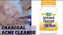 hqdefault - Activated Charcoal For Acne