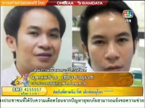 โครงการเจ้าสาวสวยจับใจ by Somchai Clinic