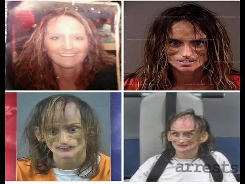 Video clip hay Shocking Before And After Drug Use Photos
